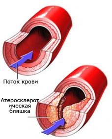 бад для снижения холестерина эвалар